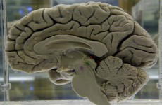 NUIG researchers discover enzyme linked with Huntington's disease mutation