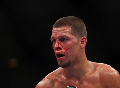 Nate Diaz: out of his brother's shadow.