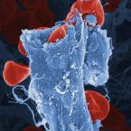 This is a colour-enhanced scanning electron micrograph of red blood cells leaking out of a ruptured blood vessel. The leaking of blood is due to a mutation in a particular gene (the ephrin-B2 gene) that causes the blood vessels to be more fragile than normal, leading to an increased rate of bleeding. The fragility is due to the inadequate coverage of the blood vessel by smooth muscle cells. This kind of leaky blood vessel is frequently found in tumours and in certain other human diseases.