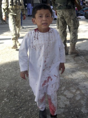 An Afghan boy, who lost his father in a suicide attack, walks around a hospital in a daze in Maymana, Faryab province north west of Kabul, Afghanistan, Friday, Oct. 26, 2012.