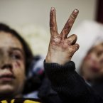 10 March: Hana, 12, flashes the victory sign next to her sister Eva, 13, as they recover from severe injuries after the Syrian Army shelled their house in Idlib, north Syria. (AP Photo/Rodrigo Abd, File)