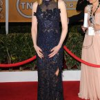 Nicole Kidman's dress needs a trimming, just around the chest area there.