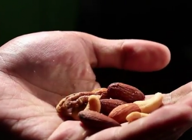 Are you allergic to nuts? Really?