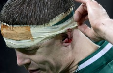 'He could have been dead 10 minutes later' – Chris Nowinski on BOD blow against France